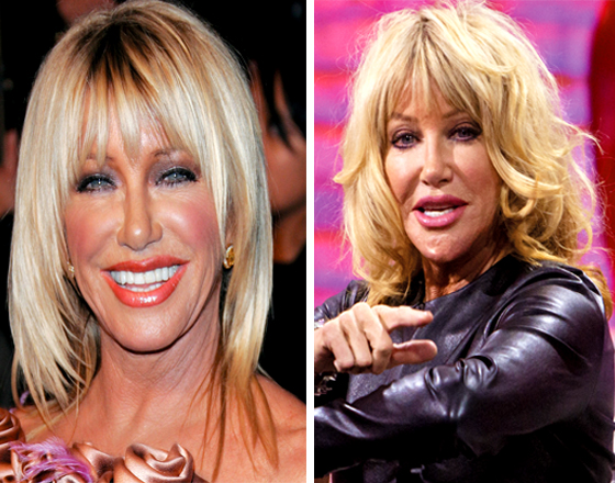 Suzanne Somers Plastic Surgery Disaster Shocker National