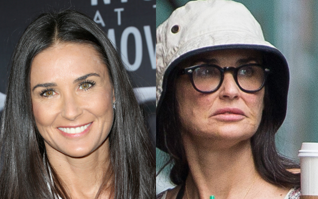 Shocking Demi Moore S Swollen Amp Bruised Face The