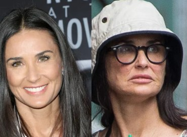 Demi moore face surgery