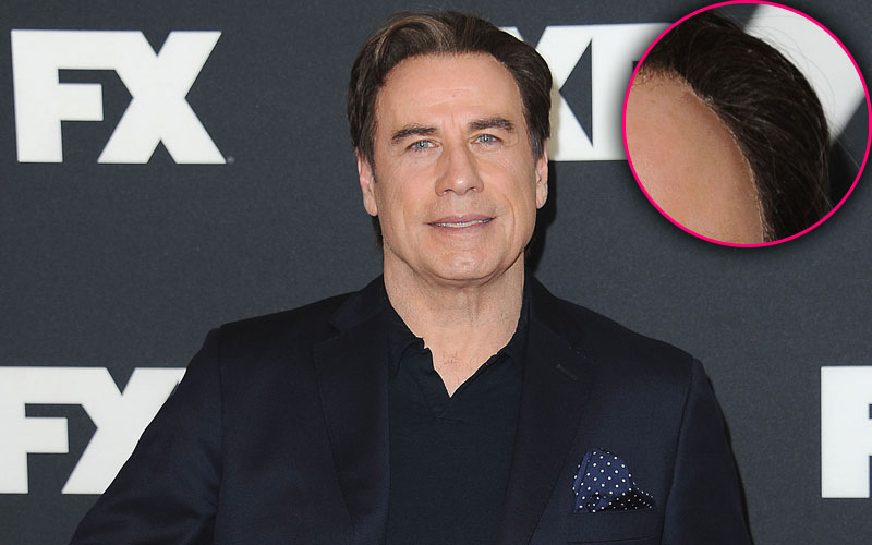 Sticky Situation John Travolta Has Odd Gunk Along His