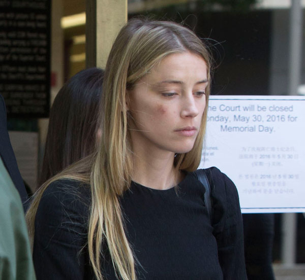 amber-heard-johnny-depp-divorce-domestic-violence-restraining-order-leaves-court-bruise-pics-04
