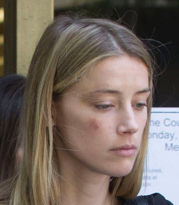 amber-heard-johnny-depp-divorce-domestic-violence-restraining-order-leaves-court-bruise-pics-06