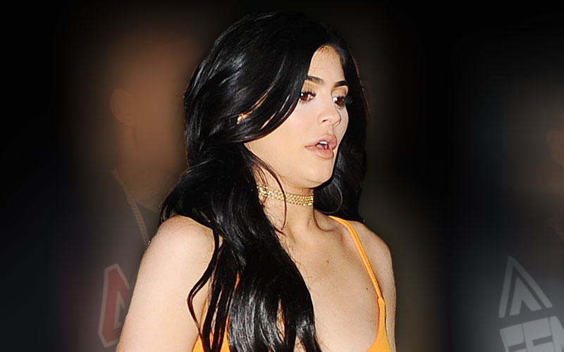 kylie-jenner-plastic-surgery-lips-01
