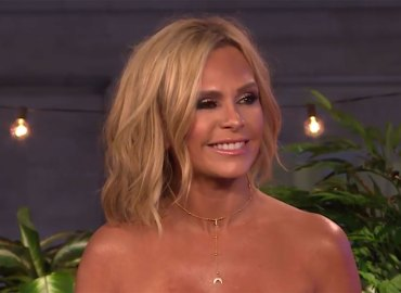 Tamra judge plastic surgery facelift rhoc