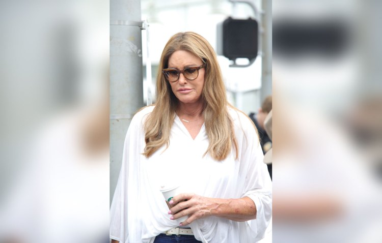 Caitlyn jenner plastic surgery disaster photos
