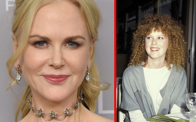 Nicole Kidman's Plastic Surgery — By The Numbers thumbnail