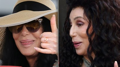 Cher plastic surgery disasters scandals 1