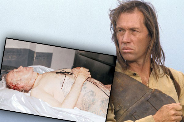 David carradine autopsy death photo 1