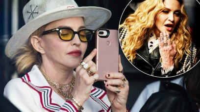 madonna plastic surgery face hands