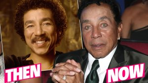 Did Smokey Robinson Get Plastic Surgery?