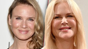 Closeup Of Renee Zellweger'Face From 2014 Next To Nicole Kidman's Face From 2019